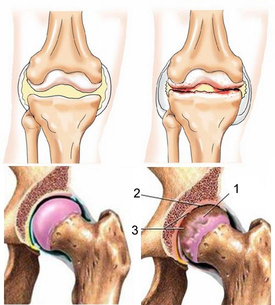 Здоровый и больной артрозом суставы